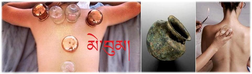 Me Bum tibetan cupping
