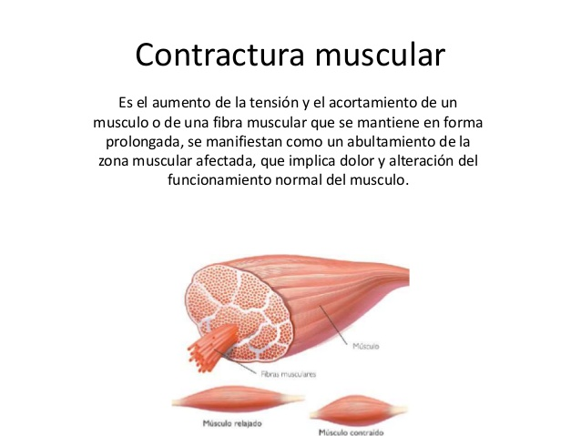 contractura muscular descripción